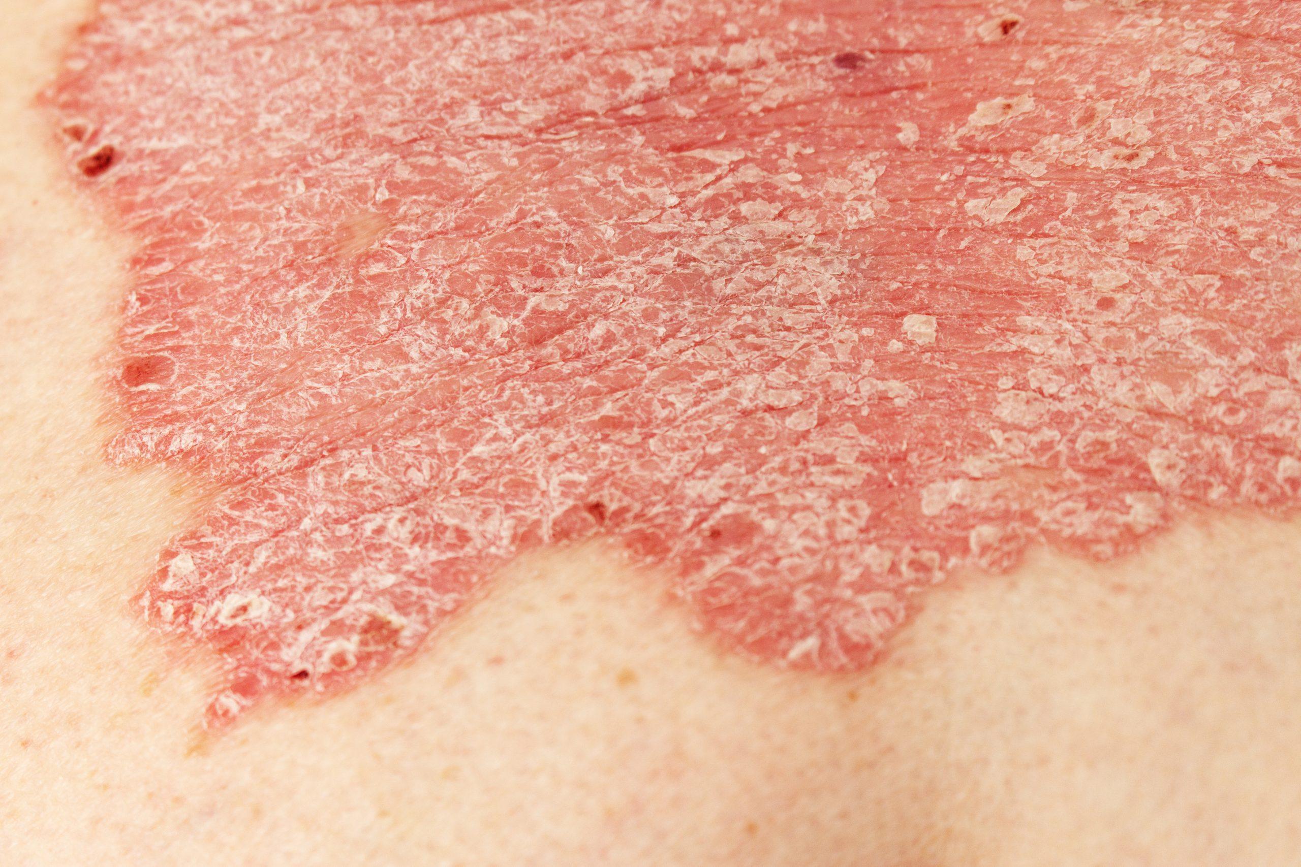 Psoriasis – Types of psoriasis