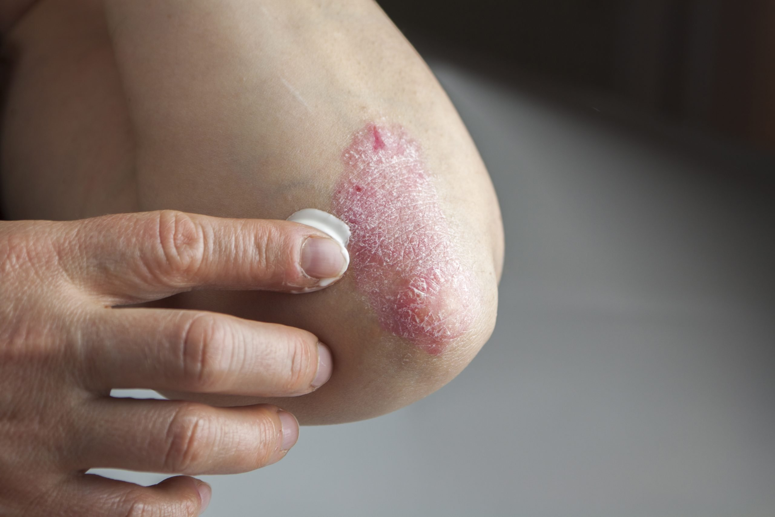 Psoriasis – Topical treatment and management of psoriasis